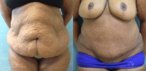 Panniculectomy Before and After Photos Patient 2C