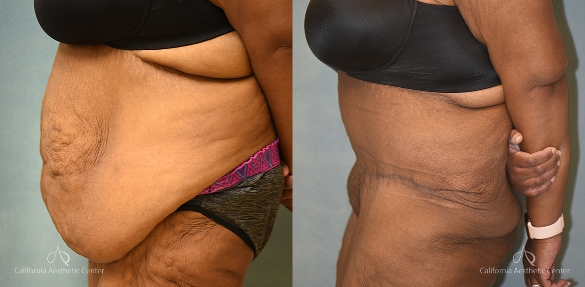 Panniculectomy Before and After Photos Patient 3A