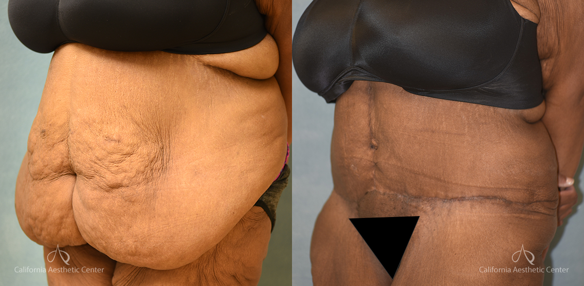 Panniculectomy Before and After Photos Patient 3B