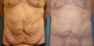 Panniculectomy Before and After Photos Patient 4A