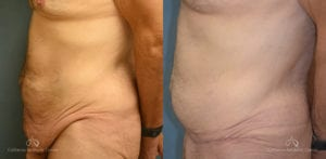 Panniculectomy Before and After Photos Patient 4C