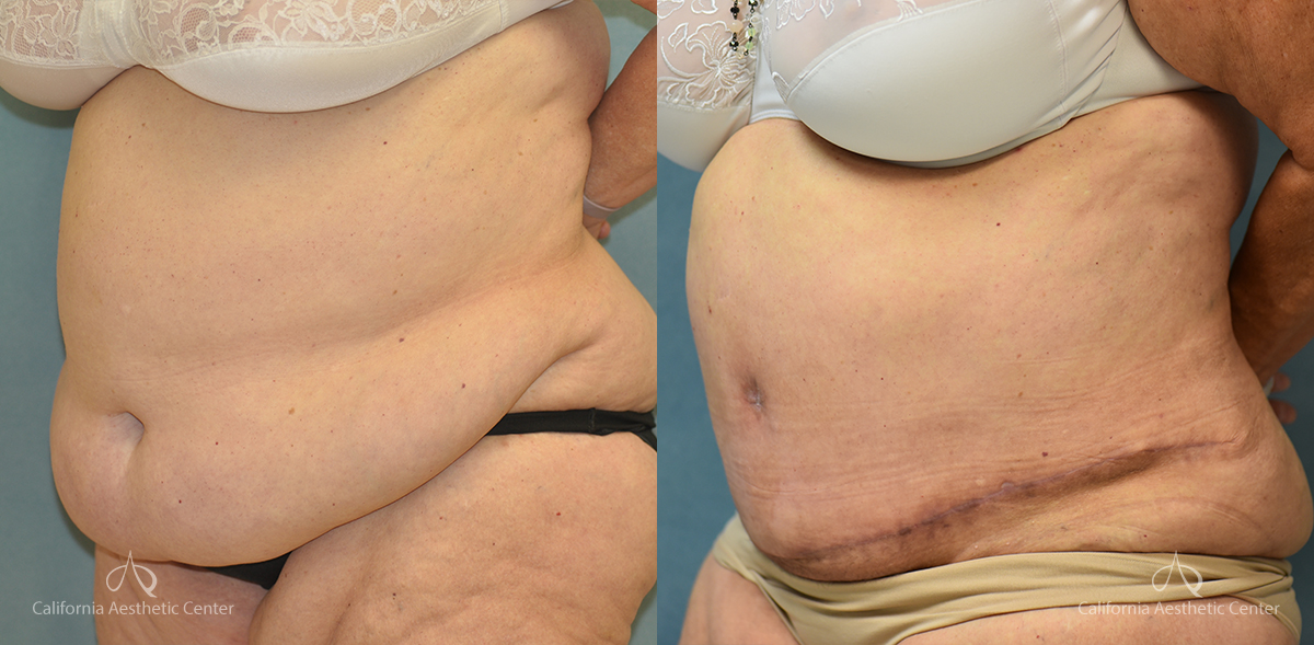 Panniculectomy Before and After Photos Patient 5A