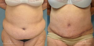 Panniculectomy Before and After Photos Patient 5C