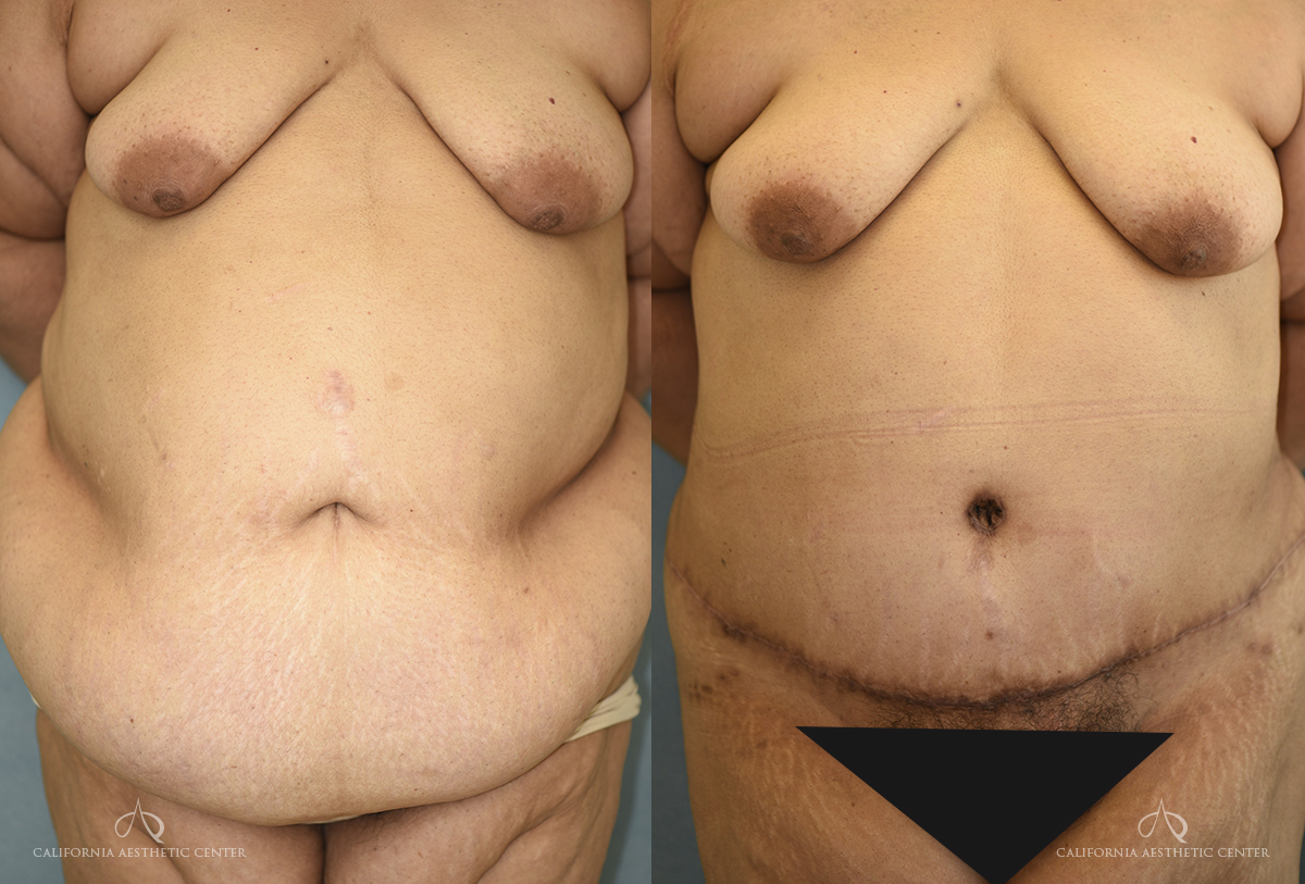 Patient 7 Panniculectomy Before and After Front View