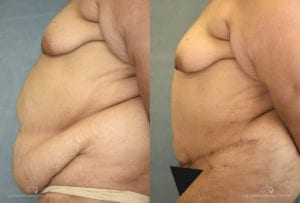 Patient 7 Panniculectomy Before and After Left Side View