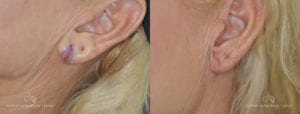 Earlobe Repair Before and After Photos Patient 1A