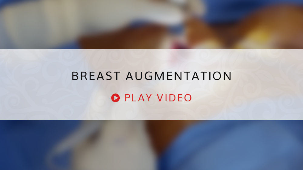 Breast Augmentation Play Video Still