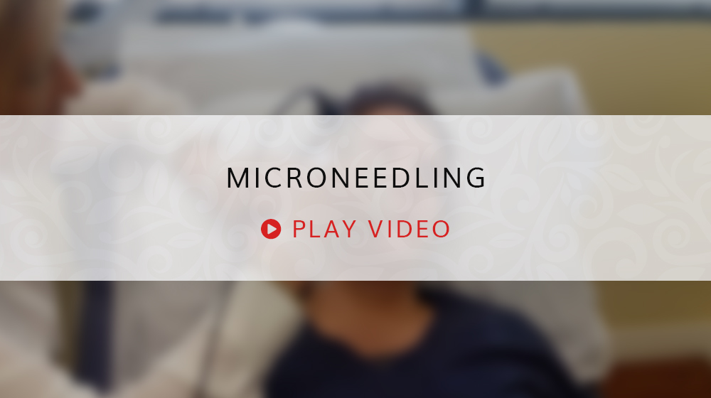 Microneedling Play Video Still