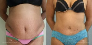 Patient 16 Abdominoplasty Before and After Front View