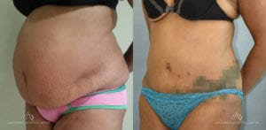 Patient 16 Abdominoplasty Before and After Left Oblique View