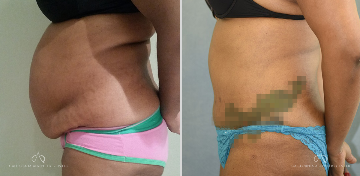 Patient 16 Abdominoplasty Before and After Left Side View