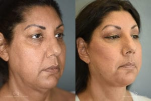 Patient 2 Facelift Before and After Right Oblique View