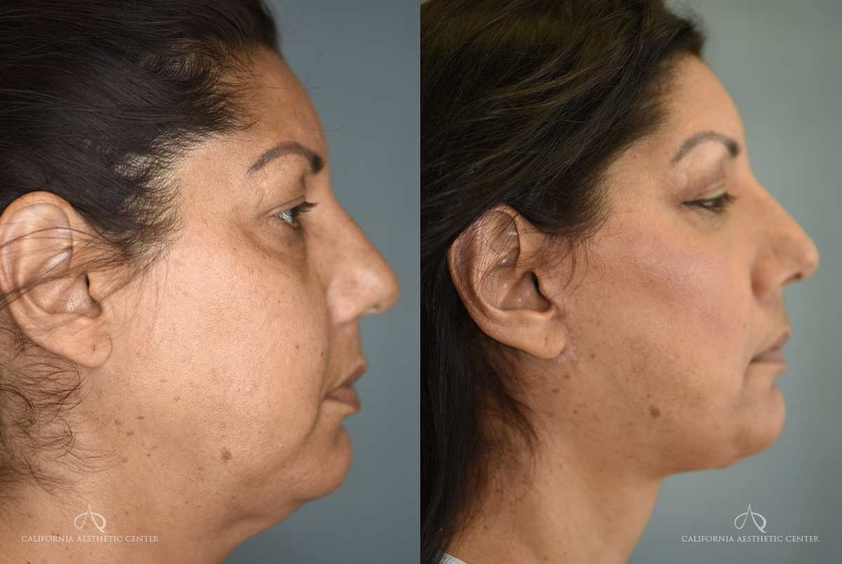 Patient 2 Facelift Before and After Right Side View