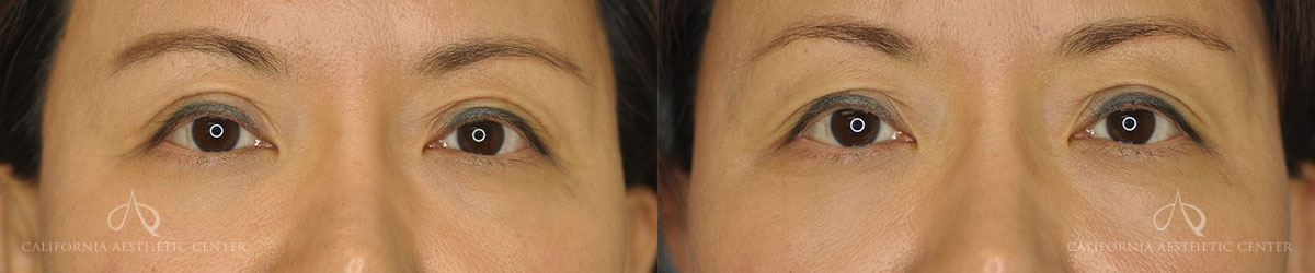 Patient 1 Asian Blepharoplasty Before and After Front View