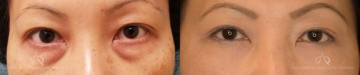 Patient 2 Asian Blepharoplasty Before and After Front View