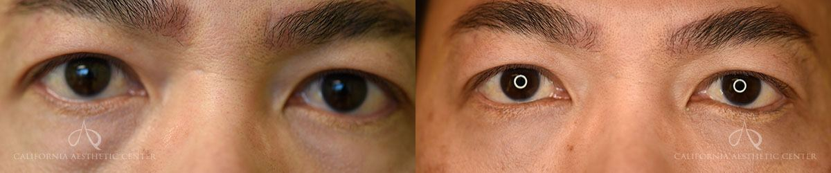 Patient 4 Asian Blepharoplasty Before and After Front View