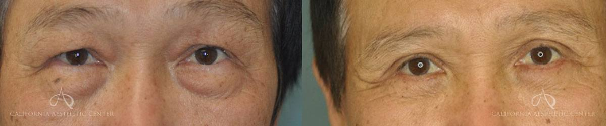 Patient 5 Asian Blepharoplasty Before and After Front View