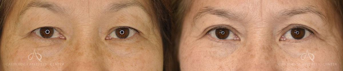 Patient 6 Asian Blepharoplasty Before and After Front View