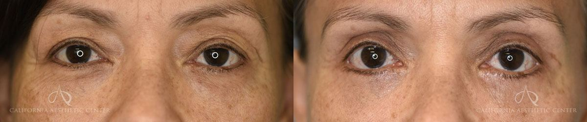 Patient 7 Asian Blepharoplasty Before and After Front View