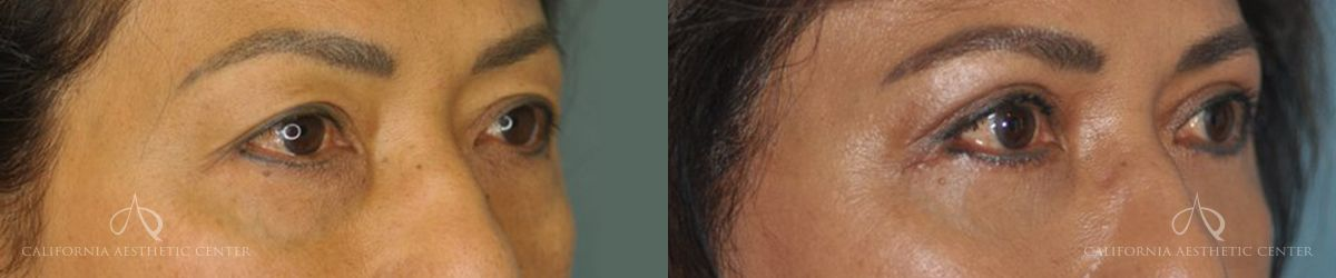 Patient 8 Asian Blepharoplasty Before and After Right Oblique View