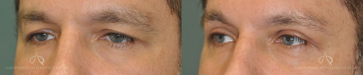 Patient 2 Blepharoplasty Before and After Left Oblique View