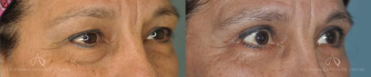 Patient 4 Blepharoplasty Before and After Right Oblique View