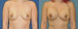Patient 6 Breast Augmentation Before and After Front View
