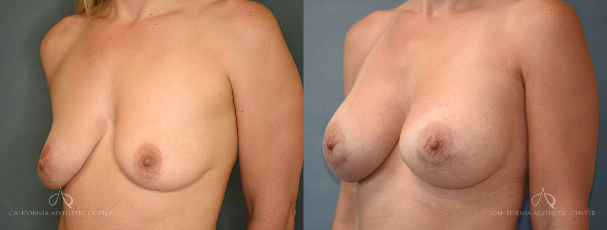 Patient 8 Breast Augmentation Before and After Left Oblique View