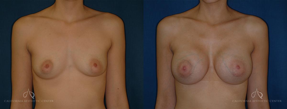 SteveVu_BreastAugmentation_Beforeandafter_Front_Patient11
