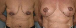 SteveVu_BreastAugmentation_Beforeandafter_Front_Patient12