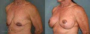 SteveVu_BreastAugmentation_Beforeandafter_Left-Oblique_Patient12