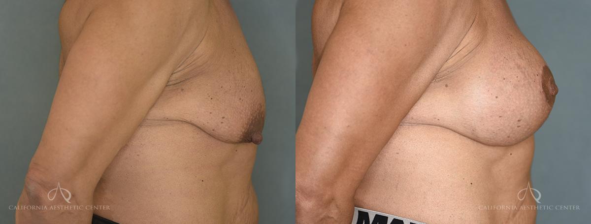 SteveVu_BreastAugmentation_Beforeandafter_Right-Side_Patient12