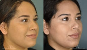 Patient 1 Rhinoplasty Before and After Right Angle View