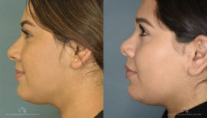 Patient 1 Rhinoplasty Before and After Left Side View