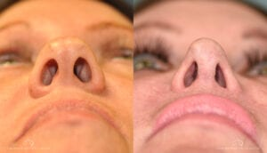 SteveVu_Rhinoplasty_Beforeandafter_Under_Patient2