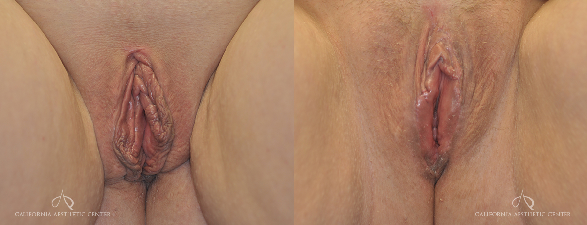 Patient 1a Labiaplasty Before and After