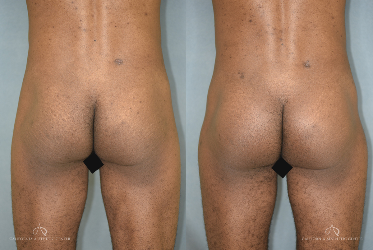 Patient 1 Brazilian Butt Lift Before and After Back View