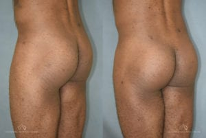 Patient 1 Brazilian Butt Lift Before and After Back Left Oblique View