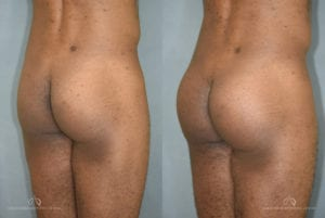 Patient 1 Brazilian Butt Lift Before and After Back Right Oblique View